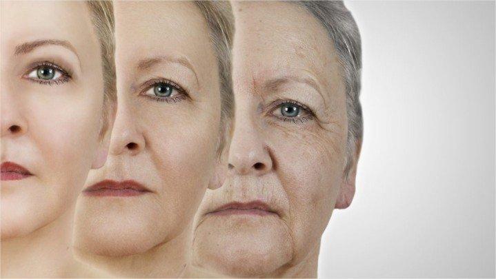 Botox-utilisation-viellissement